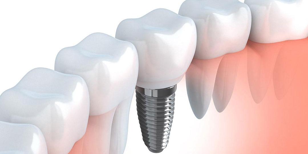 tratamientos_legrand_implantologia